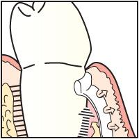 GTR(Guided Tissue Regeneration)法