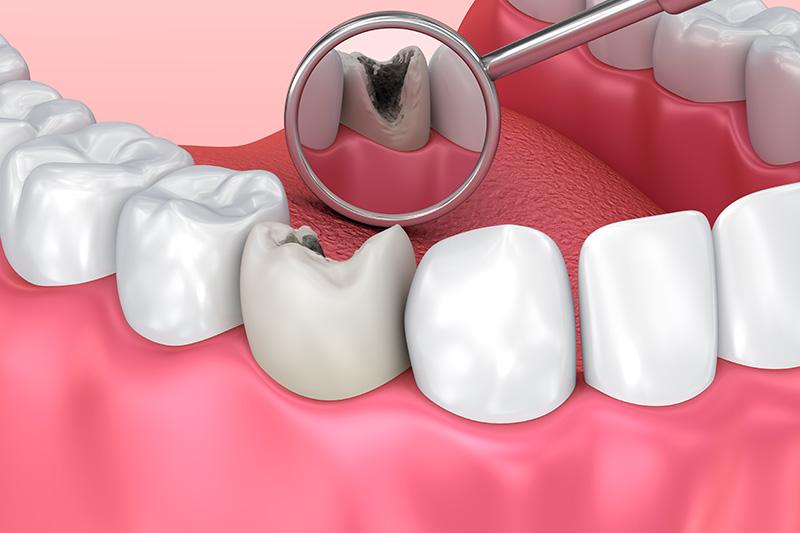 被せもの(クラウン)をした歯が、また悪化してしまう