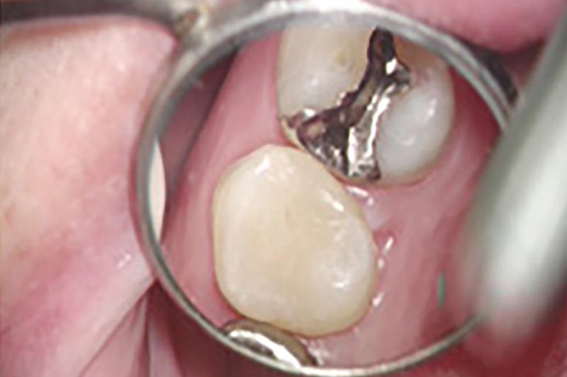 被せものをピッタリ合わせるために歯科用顕微鏡を使う